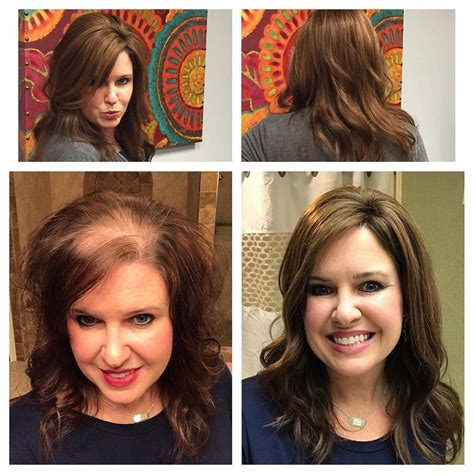 hair toppers for women with thinning hair or hair loss