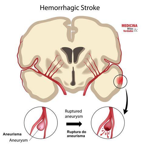aneurisma carotide interna aneurisma cerebral medicina mitos e verdades
