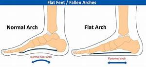 Foot Orthotics  U2013 Give The Gift Of Foot Pain Relief