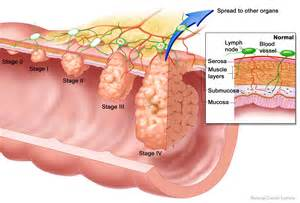 Colorectal Cancer: What's the best way to screen? Colorectal Cancer