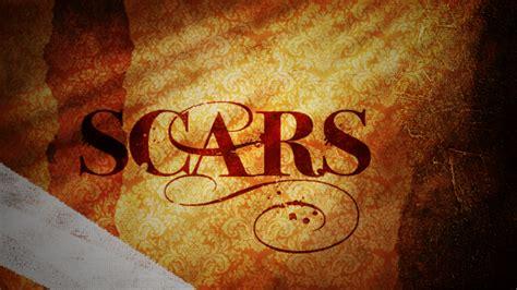 scars media national community church