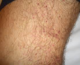 Idiopathic thrombocytopenic purpura (ITP) - Pictures
