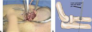 Endobutton Repair Of Distal Biceps Tendon Ruptures