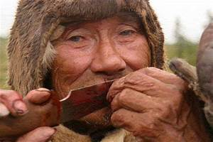 Красные бородавки на теле лечение