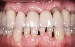 periodontal disease treatment before and after