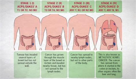 early warning signs  colon cancer