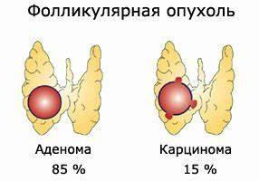 Средства для повышения иммунитета при простатите