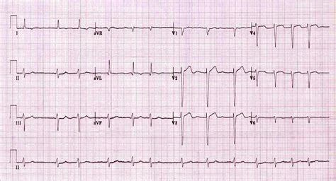 Atrial Fibrillation Af • Litfl Ecg Library. Farmer Insurance Credit Union. Online Networking Tools Varicose Vein Scrotum. Harris Online Banking For Business. Contents Insurance Toronto Student Loan Early. Freight Companies Los Angeles. Travis County Jail Austin Server Fax Software. Furnace Repair Minneapolis Fiat 500s For Sale. Moving To Canada Customs Great Barrier Siding