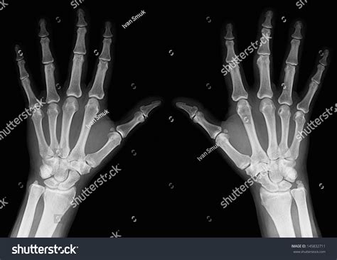 Xrays Hands Adult Man Visible Damage Stock Photo 145832711