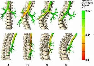 Effect Of Idiopathic Thoracic Scoliosis On The