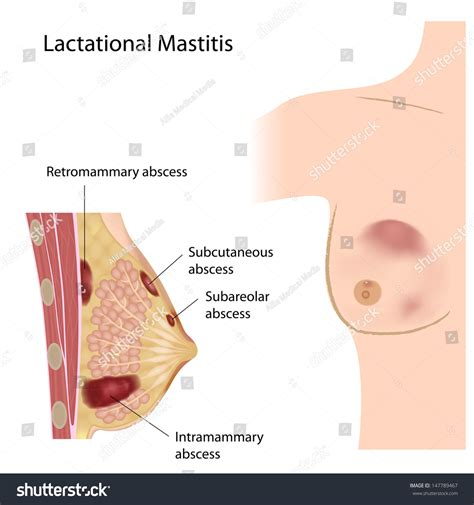 Lactational Mastitis Stock Illustration 147789467