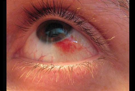 Herpes In The Eye Images Eye Herpes Symptoms Herpes Info