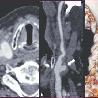 aneurisma carotide interna a b immagini rm e tc di un aneurisma sacciforme dell