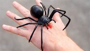 GIANT BLACK WIDOW BITE! - YouTube