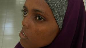 Somali Woman Waits 23 Years For Surgery To Fix Shattered