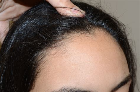 Hair Loss At The Hair Line Part 2 How To Prevent And