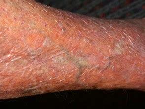 Systemic corticosteroid | DermNet NZ