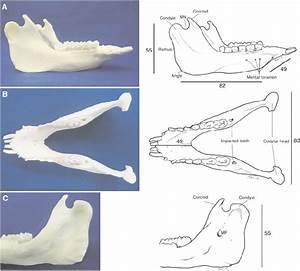 The Mandibular Bone Of A 13 Kg Six