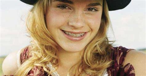 emma watson windermere orthodontics