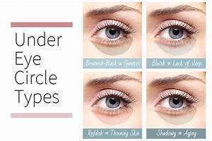 5 Ways to Eliminate Under-eye Circles | www.ladylifehacks.com