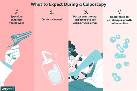 Colposcopy: Uses, Side Effects, Procedure, Results
