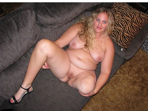 In Gallery Brave Amputee BBW Girl Showing