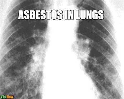 treat respiratory problems  lung disease  garlic