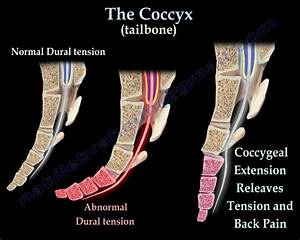 """""""Are you sitting comfortably?"""" Coccyx pain- literally a ...  Coccyx"""