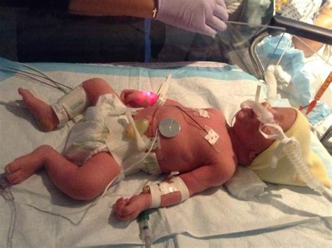 What It's Like Having A Baby In The Nicu