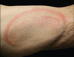 Erythematous  Annular  Scaling Patches On The Skin