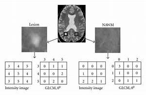 Mri Texture Analysis In Multiple Sclerosis   Figure 2