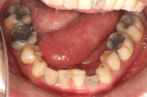 le plus gros point noir du monde intraoral clinical photographs of the patient taken before treatment scientific