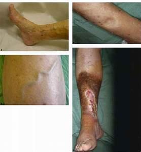 Popliteal Varicose Veins - Vascular Surgery