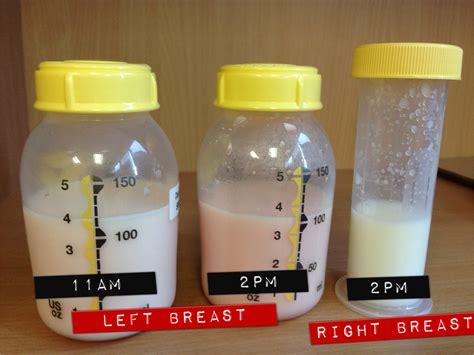 Blocked Breast Duct Feeding