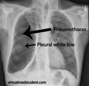 image pneumothorax_xray_marked for term side of card Pneumothorax