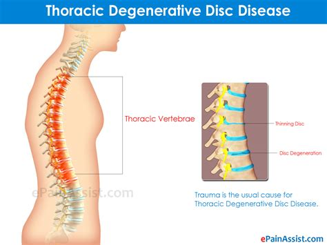 Types Of Degenerative Disc Disease & Its Symptoms. Computer Service Providers Culinary Arts Usa. Health Insurance Premium Definition. Correctional Officer Training Academy. How Much Does Wooden Flooring Cost. Nj School Nurse Certification. Accounting For Small Business. Hard Money Loans Sacramento Owens Soft Water. Products Liability Statute Of Limitations