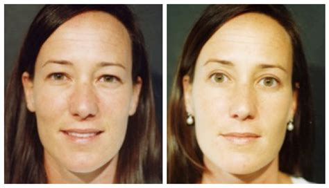 cosmetic eyelid surgery  interesting facts