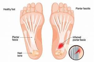 Plantar Fasciitis  Foot Pain   U2013 Causes  U0026 Treatment
