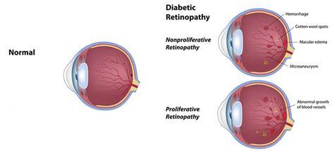 diabetes   eye portland diabetic retinopathy maine