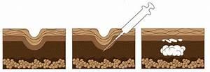 Гиалуроновая кислота средство от морщин