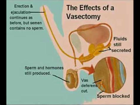does aleve come in liquid form quran 86 5 7 sperm comes from backbone of man ribs of