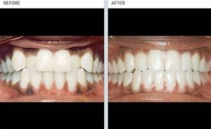 Beach Smile Dental | Your trusted dental clinic | Bay ...