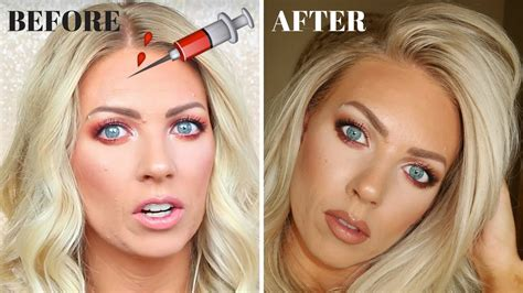 botox  experience   pictures youtube