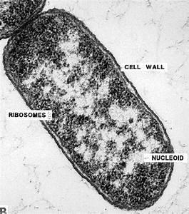 More On Bacterial Morphology