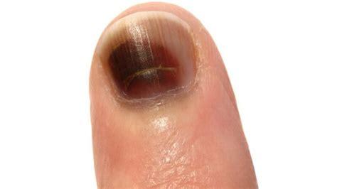 quetschungen ursachen symptome und behandlung paradiside