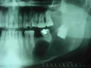 Symptome Dent De Sagesse : dents de sagesse chirurgie buccale proche paris au centre schneck ~ Maxctalentgroup.com Avis de Voitures