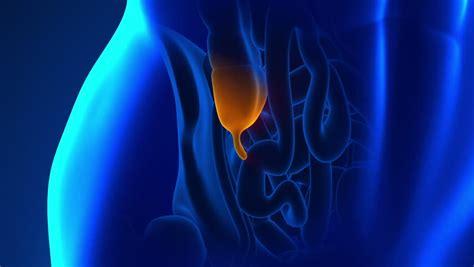 berbagai penyebab usus buntu waspadai