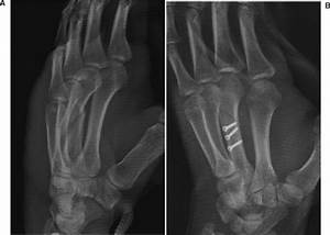 HAND FRACTURES | Anesthesia Key