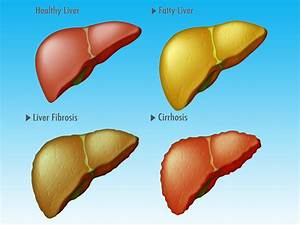New System Detects Cirrhosis In Fatty Liver Disease