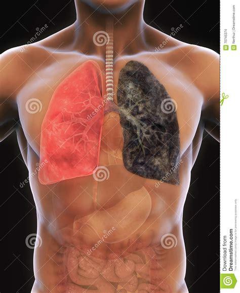 Foto van longen